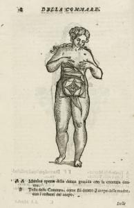 Καισαρική τομή: Η ιστορία της