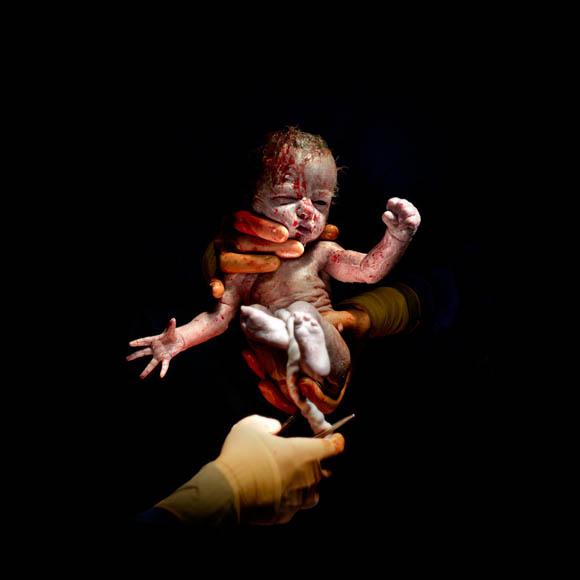 Δευτερόλεπτα μετά τη γέννηση- Έτσι μοιάζουμε στην πραγματικότητα 1