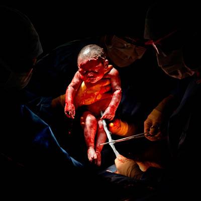 Δευτερόλεπτα μετά τη γέννηση- Έτσι μοιάζουμε στην πραγματικότητα 2