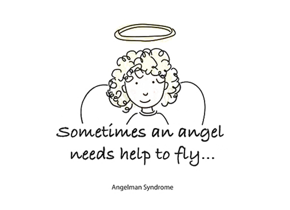 angelman syndrome emamagr