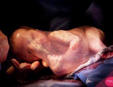Μωρό γεννήθηκε με τον αμνιακό σάκο (πέπλο της γέννησης)
