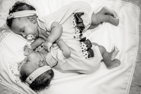 Photographer-Captures-Conjoined-Twins