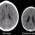 Η διαφορά μεταξύ των 2 παιδικών εγκεφάλων είναι η αγάπη