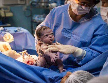 Η ιστορία πίσω από τη φωτογραφία του πιο σοβαρού μωρού που έγινε viral