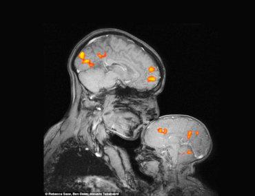 Η εικόνα MRI με το φιλί της μαμάς στο μωρό της που έγινε viral