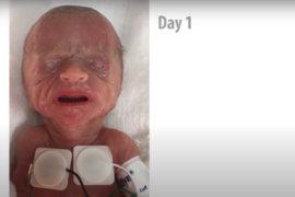 Το ταξίδι ενός προώρου μωρού που ζύγιζε 450 γρ