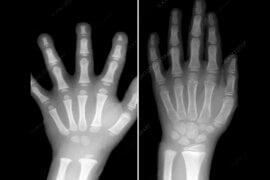 Η διαφορά μεταξύ δύο παιδικών χεριών 5 και 7 ετών